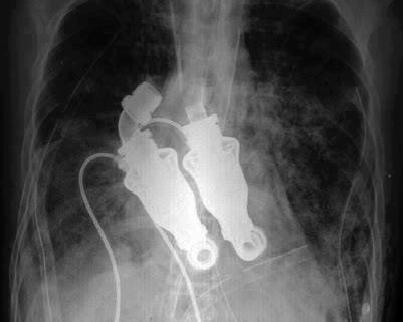 heart machine